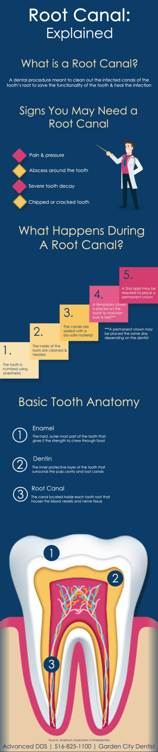 Infographic of root canal