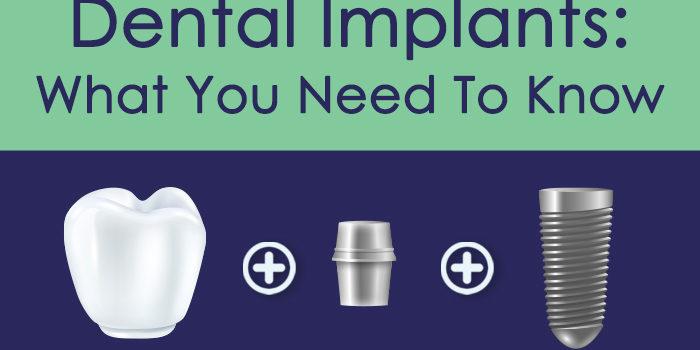 Dental Implants Title Image